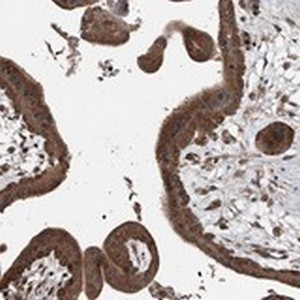 Immunohistochemistry (Formalin/PFA-fixed paraffin-embedded sections) - Anti-LTV1 antibody (ab122100)