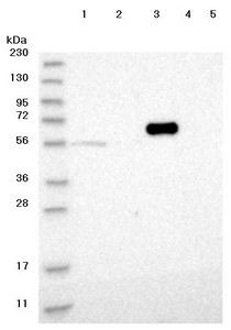 Western blot - Anti-FRMD1 antibody (ab122109)
