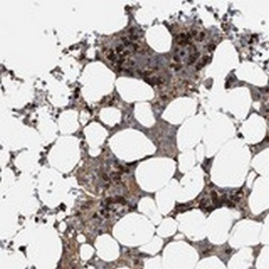 Immunohistochemistry (Formalin/PFA-fixed paraffin-embedded sections) - Anti-FRMD1 antibody (ab122109)