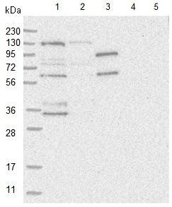 Western blot - Anti-HEATR6 antibody (ab122131)