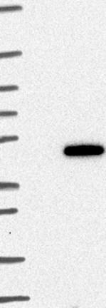 Western blot - Anti-ZNF843 antibody (ab122140)