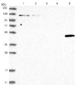 Western blot - Anti-LGSN antibody (ab122144)