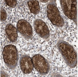 Immunohistochemistry (Formalin/PFA-fixed paraffin-embedded sections) - Anti-LGSN antibody (ab122144)