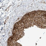 Immunohistochemistry (Formalin/PFA-fixed paraffin-embedded sections) - Anti-PROSAPIP1 antibody (ab122147)