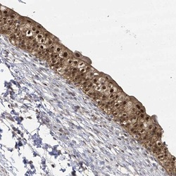 Immunohistochemistry (Formalin/PFA-fixed paraffin-embedded sections) - Anti-BROX antibody (ab122174)
