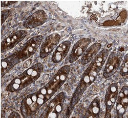 Immunohistochemistry (Formalin/PFA-fixed paraffin-embedded sections) - Anti-ASCC3 antibody (ab122179)