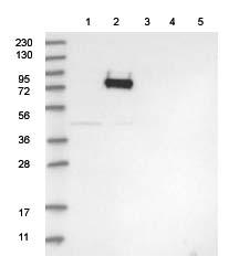 Western blot - Anti-GLT25D2 antibody (ab122193)