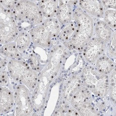 Immunohistochemistry (Formalin/PFA-fixed paraffin-embedded sections) - Anti-TSPYL1 antibody (ab122200)