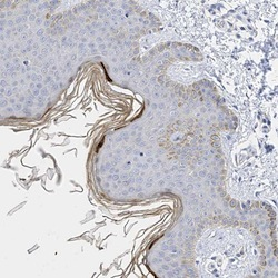 Immunohistochemistry (Formalin/PFA-fixed paraffin-embedded sections) - Anti-KPRP antibody (ab122201)