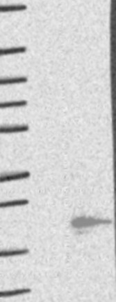 Western blot - Anti-MMGT1 antibody (ab122202)