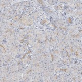 Immunohistochemistry (Formalin/PFA-fixed paraffin-embedded sections) - Anti-C9orf84 antibody (ab122208)