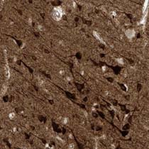 Immunohistochemistry (Formalin/PFA-fixed paraffin-embedded sections) - Anti-HS6ST2 antibody (ab122220)
