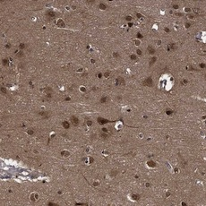 Immunohistochemistry (Formalin/PFA-fixed paraffin-embedded sections) - Anti-SYCP2L antibody (ab122224)