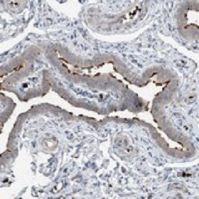 Immunohistochemistry (Formalin/PFA-fixed paraffin-embedded sections) - Anti-DNAH7 antibody (ab122226)