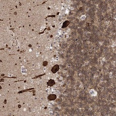 Immunohistochemistry (Formalin/PFA-fixed paraffin-embedded sections) - Anti-KIF4A antibody (ab122228)