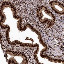 Immunohistochemistry (Formalin/PFA-fixed paraffin-embedded sections) - Anti-FIGN antibody (ab122238)