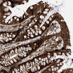 Immunohistochemistry (Formalin/PFA-fixed paraffin-embedded sections) - Anti-FAM9B antibody (ab122253)
