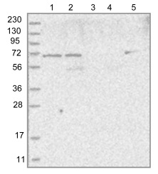 Western blot - Anti-LOXL3 antibody (ab122263)