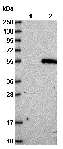 Western blot - Anti-C1orf156 antibody (ab122266)