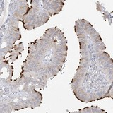 Immunohistochemistry (Formalin/PFA-fixed paraffin-embedded sections) - Anti-TRANK1 antibody (ab122283)