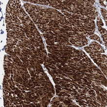 Immunohistochemistry (Formalin/PFA-fixed paraffin-embedded sections) - Anti-FAM155B antibody (ab122307)