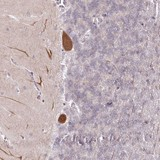 Immunohistochemistry (Formalin/PFA-fixed paraffin-embedded sections) - Anti-Amelotin antibody (ab122312)