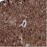 Immunohistochemistry (Formalin/PFA-fixed paraffin-embedded sections) - Anti-ANKAR antibody (ab122319)