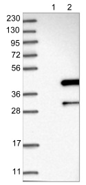 Western blot - Anti-ANKRD23 antibody (ab122320)
