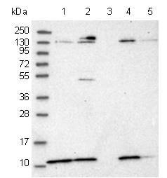 Western blot - Anti-PIGY antibody (ab122338)