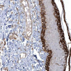 Immunohistochemistry (Formalin/PFA-fixed paraffin-embedded sections) - Anti-ARHGEF38 antibody (ab122345)