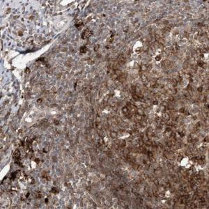 Immunohistochemistry (Formalin/PFA-fixed paraffin-embedded sections) - Anti-C11orf51 antibody (ab122349)