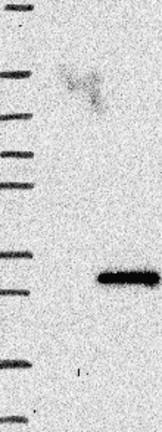 Western blot - Anti-C11orf51 antibody (ab122349)