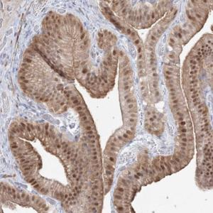 Immunohistochemistry (Formalin/PFA-fixed paraffin-embedded sections) - Anti-ARHGAP21 antibody (ab122350)