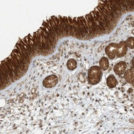 Immunohistochemistry (Formalin/PFA-fixed paraffin-embedded sections) - Anti-KIAA0232 antibody (ab122376)