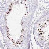 Immunohistochemistry (Formalin/PFA-fixed paraffin-embedded sections) - Anti-C10orf91 antibody (ab122382)