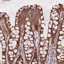 Immunohistochemistry (Formalin/PFA-fixed paraffin-embedded sections) - Anti-DNAH12 antibody (ab122394)