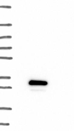 Western blot - Anti-MOCS2 antibody (ab122406)
