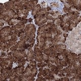 Immunohistochemistry (Formalin/PFA-fixed paraffin-embedded sections) - Anti-C3orf25 antibody (ab122408)