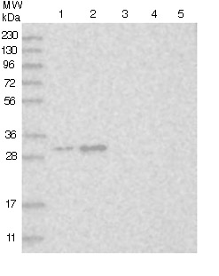Western blot - Anti-MBLAC2 antibody (ab122411)