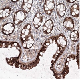 Immunohistochemistry (Formalin/PFA-fixed paraffin-embedded sections) - Anti-APC16 antibody (ab122416)