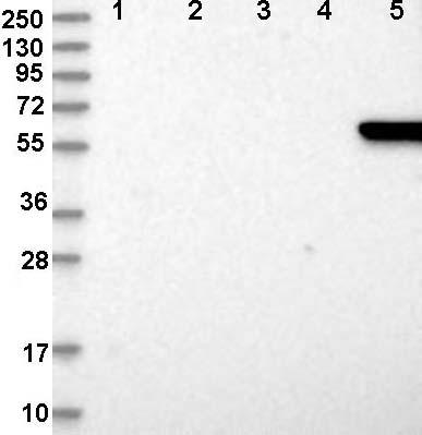 Western blot - Anti-GABA Transporter 3 / GAT 3 antibody (ab122430)