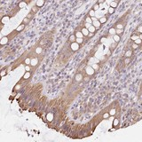 Immunohistochemistry (Formalin/PFA-fixed paraffin-embedded sections) - Anti-FAM208B antibody (ab122433)