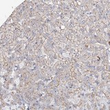 Immunohistochemistry (Formalin/PFA-fixed paraffin-embedded sections) - Anti-FAM208B antibody (ab122434)
