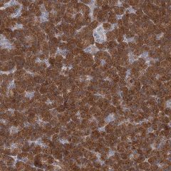 Immunohistochemistry (Formalin/PFA-fixed paraffin-embedded sections) - Anti-EFR3B antibody (ab122439)