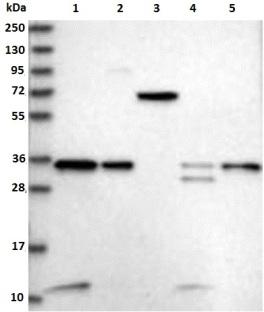 Western blot - Anti-VPS37B antibody (ab122450)