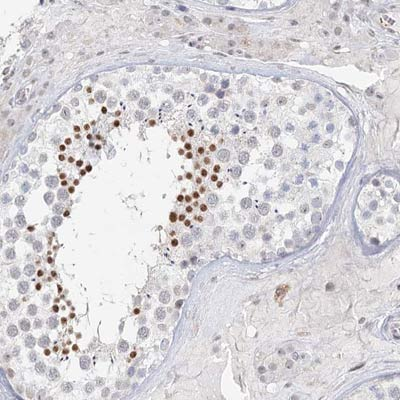 Immunohistochemistry (Formalin/PFA-fixed paraffin-embedded sections) - Anti-C6orf222 antibody (ab122471)