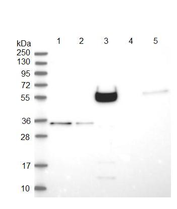 Western blot - Anti-CCDC65 antibody (ab122482)