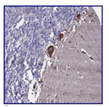 Immunohistochemistry (Formalin/PFA-fixed paraffin-embedded sections) - Anti-C11orf70 antibody (ab122489)