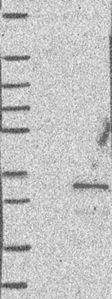 Western blot - Anti-C11orf70 antibody (ab122489)