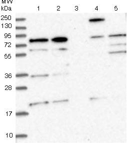 Western blot - Anti-KIAA1731 antibody (ab122490)